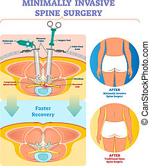 Minimally invasive spine surgery vector illustration. Labeled medical diagram with endoscope camera, retractor tubes, tool, table fixed arms and compressed spinal nerves.