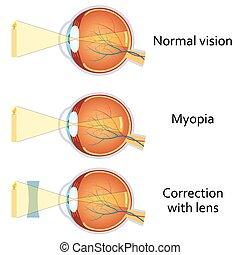 miopia, corrected, menos, lens.