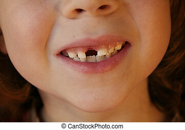 Missing Front Tooth - Tight Shot of six year old girl with...