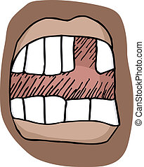 Missing Tooth - Close-up illustration of an open mouth with...