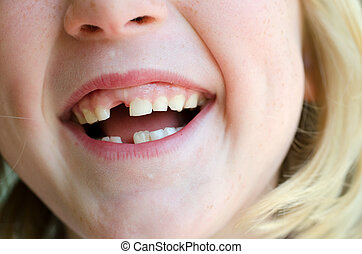 Missing Tooth - Childs mouth with gap from missing milk...