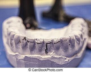 Model for dental technician, articulator