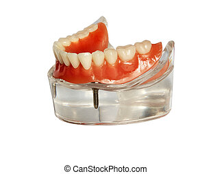 Model of a jaw and denture 1