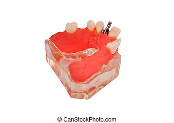 jaw with implant - model of jaw with implant on a white...