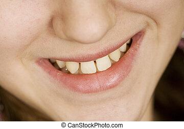 Model Release 307 Teenage girl with teeth that need of dental work