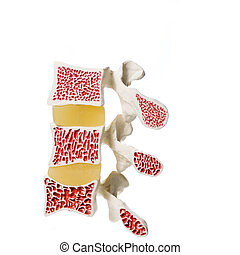 modelo, artificial, osteoporosis