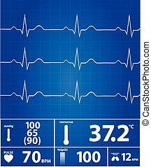 moderne, elektrocardiogram, monitor