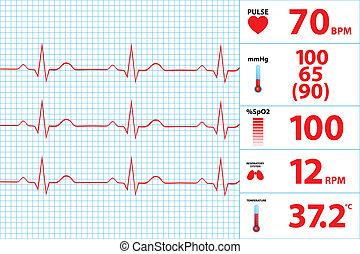 modernos, electrocardiograma, monitor