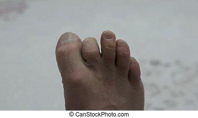 moisissure, formé, pied, calluses, humain, orteils, négligé