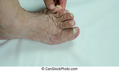 moisissure, onychomycosis., clous, infection
