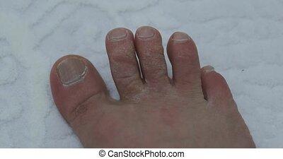 moisissure, pied humain, formé, négligé, calluses, orteils