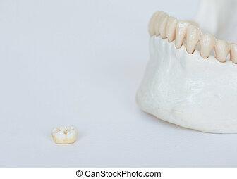 molar, kiefer, zahn, hintergrund, modell, weißes, knochen