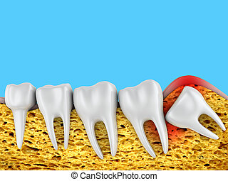 molars and wisdom tooth - Dental row of molars and an ...