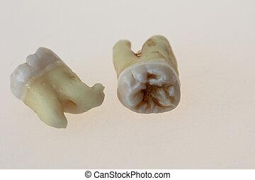 molars, tercero