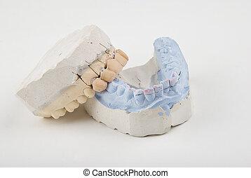 Mold - Dental mold with false teeth on a grey light ...