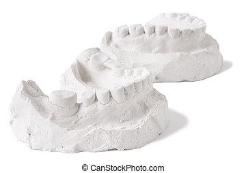 mold, i, en, fulde, sæt, i, menneske tand