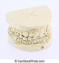 Mold of human teeth
