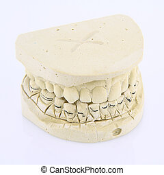 Mold of human teeth