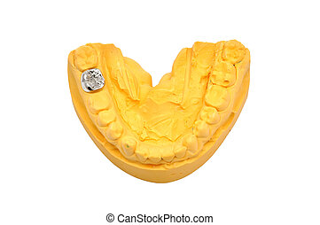 molde, dental