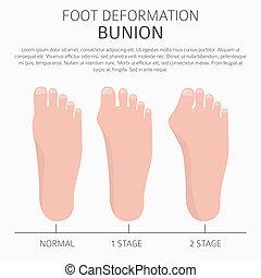 monde médical, oignon, pied, déformation, causes, desease, infographic.