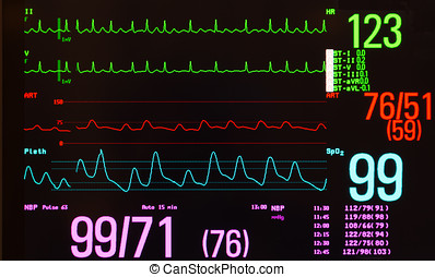 Monitor with Atrial Flutter