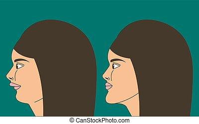 morsure, distal, femme, malocclusion