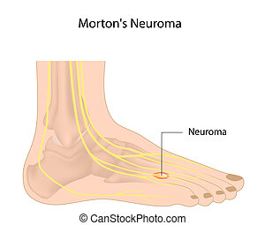 Morton%u2019s neuroma, eps10 - Abnormal growth of nerve...