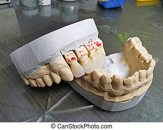 Mouth model with porcelain teeth