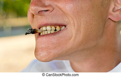 Mouth with teeth affected by nicotine - Close-up of the...