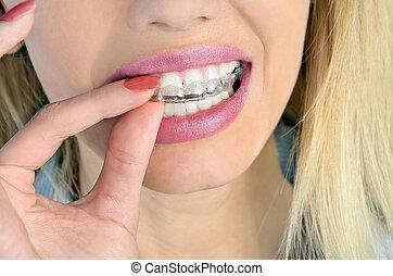 mouthguard, 여자