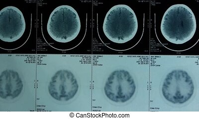 moving head pet cT scan, skull brain X-ray.80:ray, x-ray, ...
