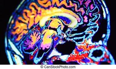 MRI scan on computer monitor