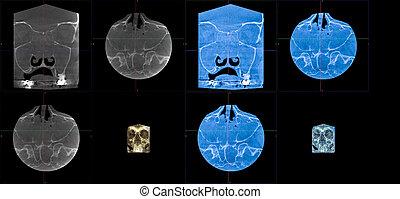 MRT, foreign body of the right maxillary sinus - MRT -...