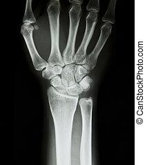 muñeca, radiografía, humano, mano