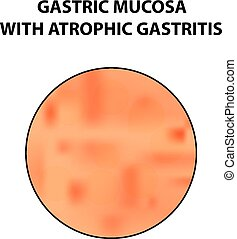 Mucous stomach with atrophic gastritis. Infographics. Vector illustration on isolated background.
