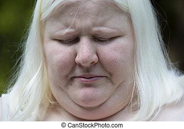 mujer, albino
