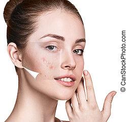 mujer, después, cara, skin., tratamiento, antes