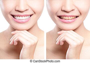 mujer, dientes, antes y después, tiza