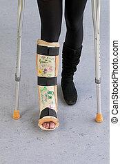 muletas, gesso, mulher, hospitalar, perna