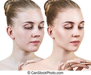 mulher, após, jovem, treatment., pele, antes de