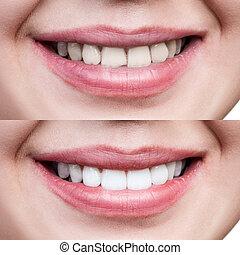 mulher, após, jovem, whitening., dentes, antes de