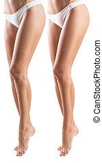 mulher, após, skin., tratamento, pernas, antes de