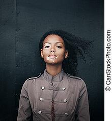 mulher bonita, jovem, vitiligo, doença, morena