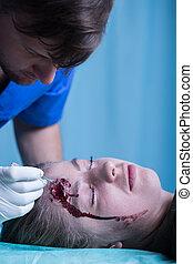 mulher, com, ferido, cabeça