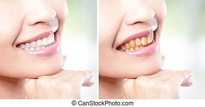 mulher, dentes, before.and.after, whitening
