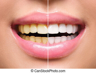 mulher, dentes, before.and.after, whitening., cuidado oral