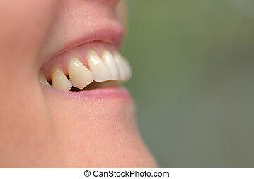 mulher, dentes, parodontose