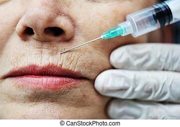 mulher, obtendo, idoso, injeção, botox, procedimento