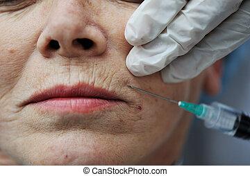 mulher, pele, cuidado velho, obtendo, injeção