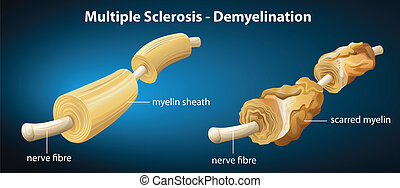 Multiple Sclerosis - Illustration showing the multiple...